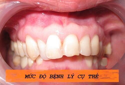 Niềng răng mất bao lâu để có được hàm răng ĐỀU - ĐẸP như BẮP 2