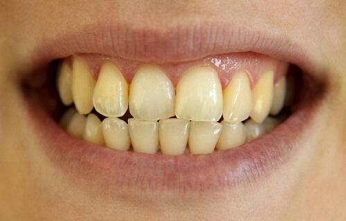 Những thông tin không thể bỏ qua về máng tẩy trắng răng tại nhà 3