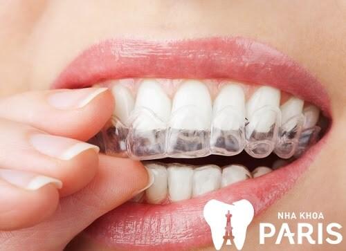 Những thông tin không thể bỏ qua về máng tẩy trắng răng tại nhà 4