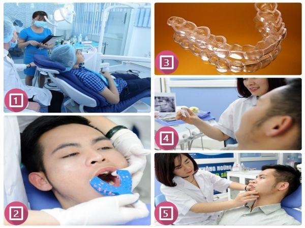 Những thông tin không thể bỏ qua về máng tẩy trắng răng tại nhà 5