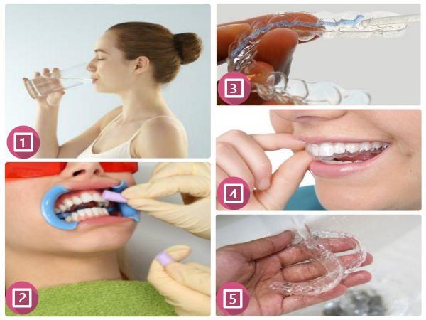 Những thông tin không thể bỏ qua về máng tẩy trắng răng tại nhà 7