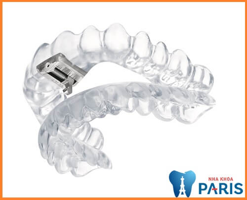 Những thông tin không thể bỏ qua về máng tẩy trắng răng tại nhà 6
