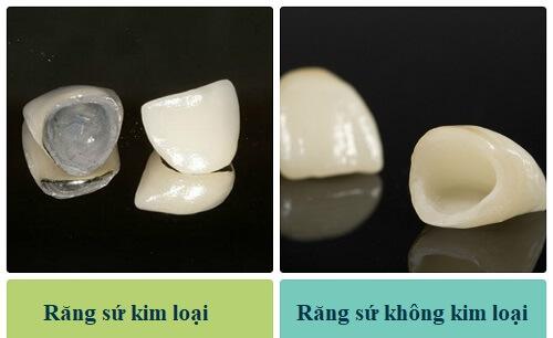 Trồng răng giả loại nào Tốt - Chất lượng đảm bảo có độ bền vĩnh viễn? 1