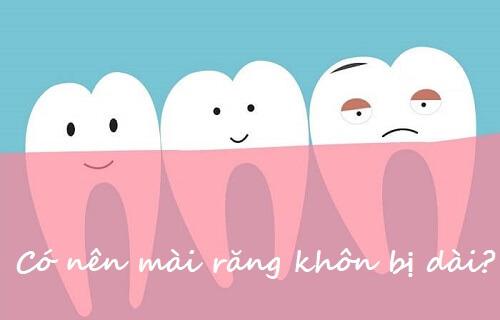 Giải đáp thắc mắc: Mài răng khôn cho ngắn lại có được không? 1