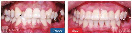 Riview địa chỉ nha khoa uy tín tại Hà Nội - Vĩnh biệt răng xấu 3