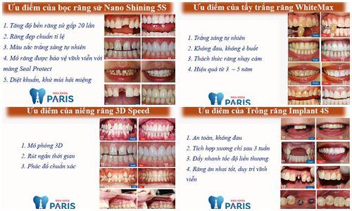 Riview địa chỉ nha khoa uy tín tại Hà Nội - Vĩnh biệt răng xấu 2