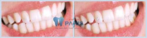 Riview địa chỉ nha khoa uy tín tại Hà Nội - Vĩnh biệt răng xấu 8