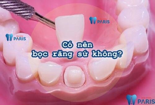 Có nên bọc răng sứ thẩm mỹ không & bọc răng có ưu điểm gì? 1