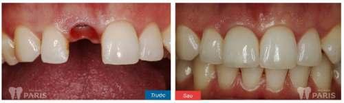 Làm răng tại Nha khoa Paris có đau không? Riview từ khách hàng 4