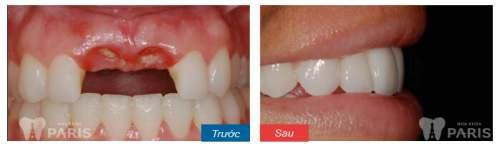 Làm răng tại Nha khoa Paris có đau không? Riview từ khách hàng 5