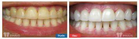 Làm răng tại Nha khoa Paris có đau không? Riview từ khách hàng 3