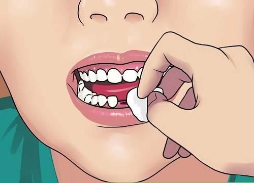 Kết quả hình ảnh cho Trước hết là quá trình cầm máu sau khi nhổ răng