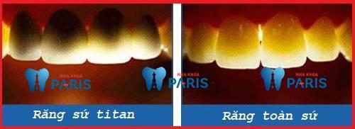 Làm răng sứ Titan giá bao nhiêu? Bảng giá Mới & Ưu đãi 30% 2
