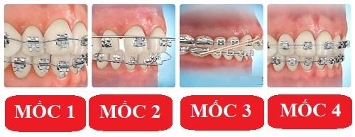 Niềng răng mất bao lâu? 3 yếu tố quyết định đến thời gian niềng răng 1