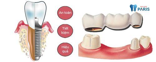 Kết hợp làm cầu răng sứ và Implant