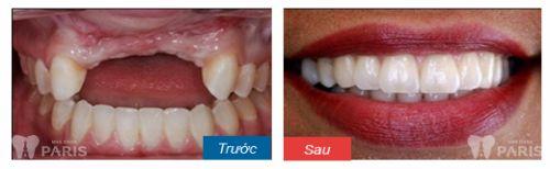 Kết hợp làm cầu răng sứ và implant4
