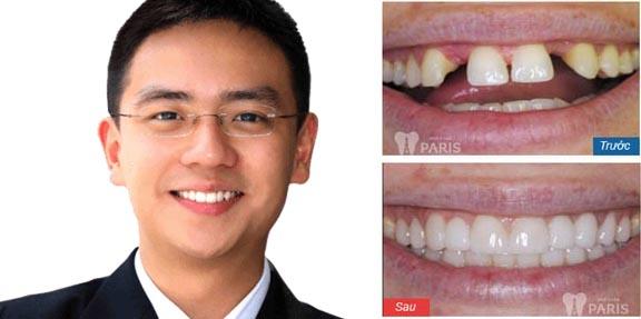 """Quy trình điều trị răng tại nha khoa Paris """"Chuẩn"""" công nghệ Pháp 3"""