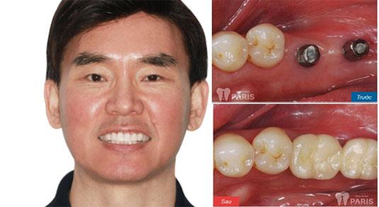 """Quy trình điều trị răng tại nha khoa Paris """"Chuẩn"""" công nghệ Pháp 4"""