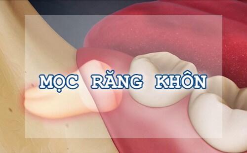 Những nguyên nhân gây đau nhức răng thường gặp & cách chữa 3