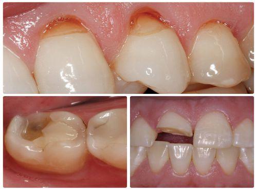Những nguyên nhân gây đau nhức răng thường gặp & cách chữa 5