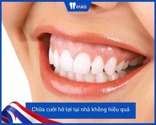 chữa cười hở lợi tại nhà có hiệu quả không