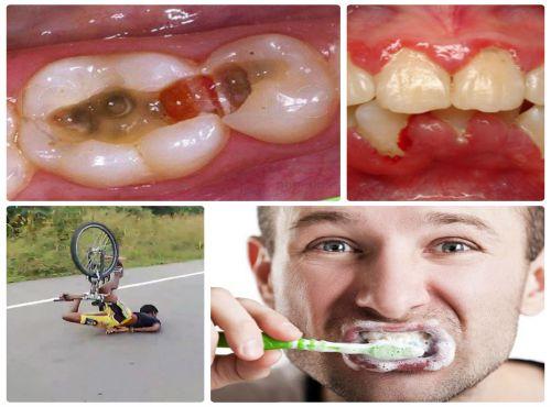 Đau nhức răng - Nguyên nhân, mức độ nguy hiểm và cách điều trị hiệu quả 2
