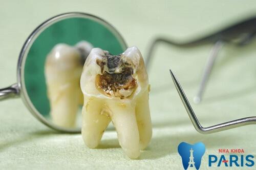 Nguyên nhân gây sâu răng khôn