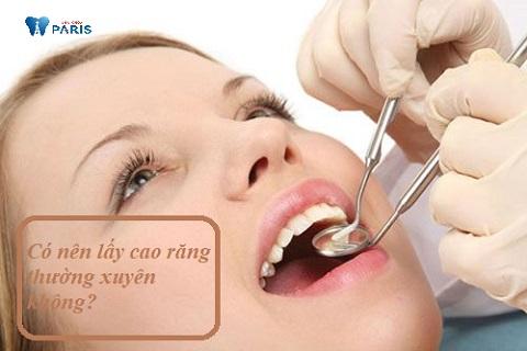 Có nên lấy cao răng thường xuyên không khi cao răng gây mất thẩm mỹ?