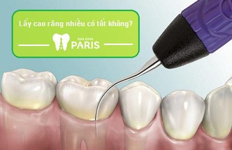 Lấy cao răng nhiều có tốt không là thắc mắc của nhiều khách hàng