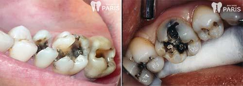 Hình ảnh răng sâu 1