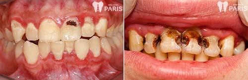 Hình ảnh răng sâu 3