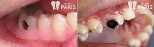 Các hình ảnh răng sâu nghiêm trọng và cách xử lý để ngăn chặn