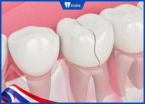 trồng răng giá rẻ