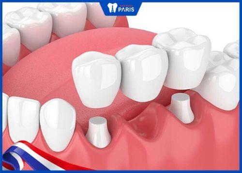 cách trồng răng sứ với cầu răng