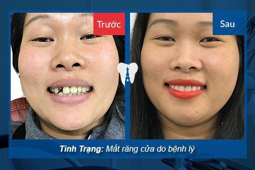 cách trồng răng cố định bằng Implant