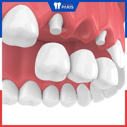 trồng răng giả có đau không