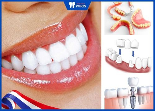 trồng răng giả loại nào tốt