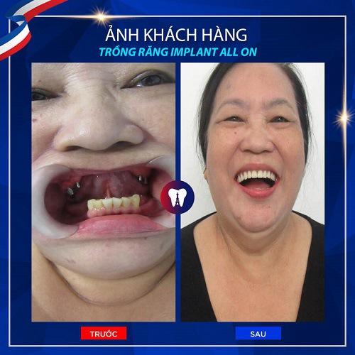 khách hàng chọn cách trồng răng sứ Implant