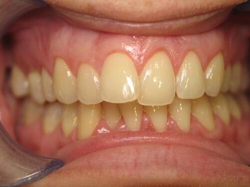 5 cách làm trắng răng bị ố vànghiệu quả cực nhanh, an toàntại nhà 6