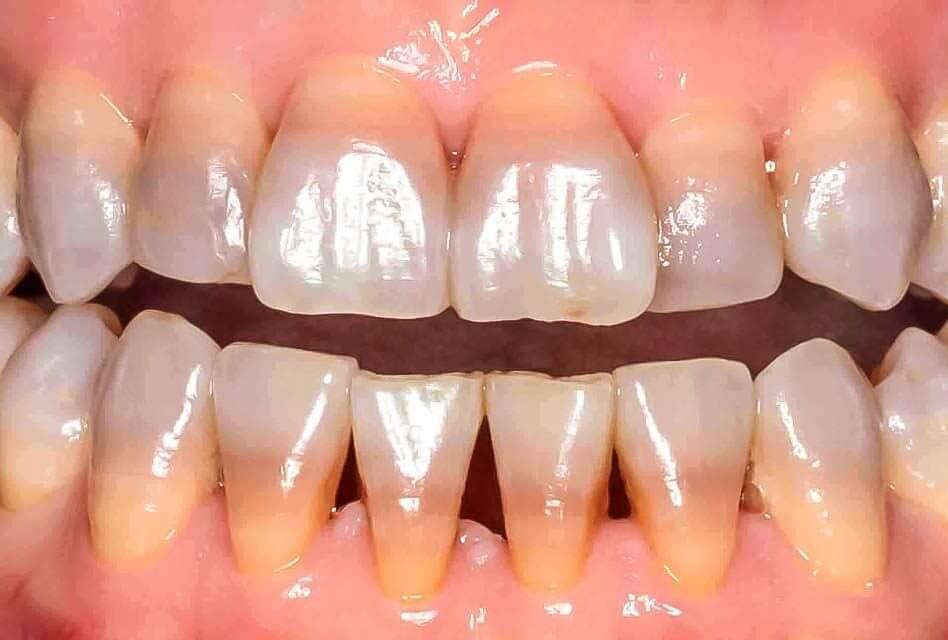 5 cách làm trắng răng bị ố vànghiệu quả cực nhanh, an toàntại nhà 7
