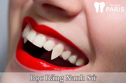 Bọc răng nanh sứ 1