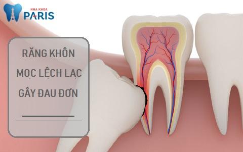 Mọc răng khôn đau trong bao lâu khi răng mọc lệch?