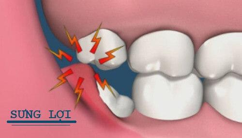 Dấu hiệu mọc răng khôn là lợi bị sưng đỏ