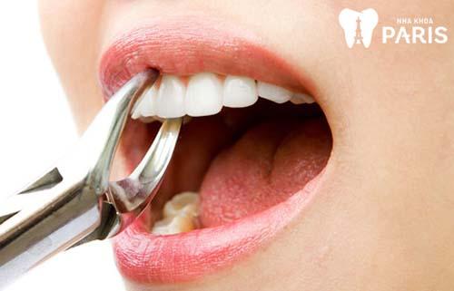 Nhổ răng buổi nào tốt nhất 1