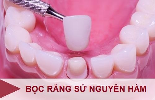 Bọc răng sứ nguyên hàm – Giải pháp khắc phục răng bị nhiễm màu kháng sinh