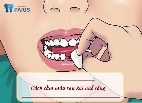Cắn chặt bông gòn là cách cầm máu sau khi nhổ răng hiệu quả nhất