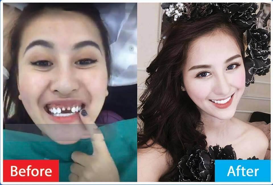 [Chia sẻ] Điểm mặt các sao Việt bọc răng sứ thẩm mỹ hiệu quả 5