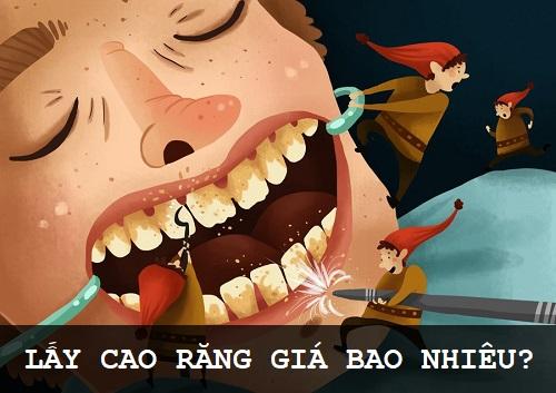 [Giải đáp] Giá lấy cao răng bao nhiêu tiền hiện nay? 1
