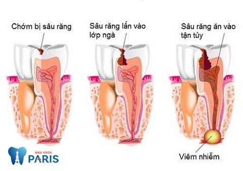 chữa tủy răng giá bao nhiêu