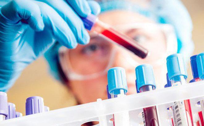 Trước khi nhổ răng cần xét nghiệm máu để xác định những căn bệnh gây nguy hiểm khi nhổ răng